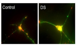DSneurona