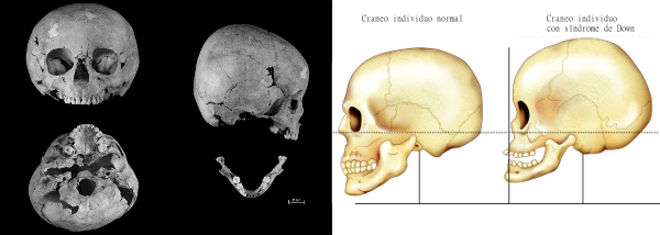 down-syndrome-skull